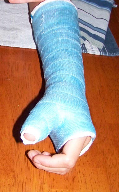 casted-arm